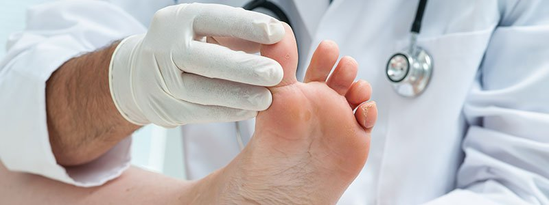Treating Diabetic Peripheral Neuropathy Naturally